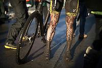 post-race legs<br /> <br /> Azencross Loenhout 2014