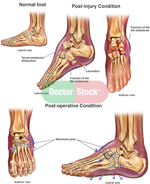 Crushed Foot with Surgical Repair. This full color medical illustration series portrays multiple post-accident crush injuries on lateral and anterior views of the left foot. The injuries featured are: dramatic tarsal-metatarsal dislocation and separation, fracture of the fifth metatarsal, and laceration to the sole. These images are followed by anterior and lateral views of the foot after multiple percutaneous Steinmann pins have been placed to reduce the foot bones into anatomical alignment.