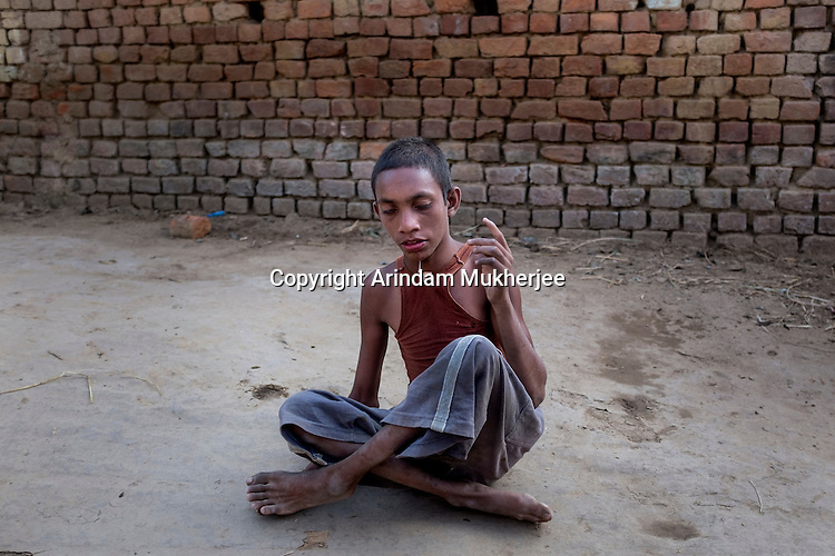 Rakesh Gope of Bango village is about 18 but looks 12 or 13. Rakesh is both physically and mentally challenged. His legs and badly deformed and he walks on his toes with an awkward gait. He used to go to school but has dropped out recently. His father died a few months ago. His mother now works in the rice fields to sustain her family of seven, including Rakesh.