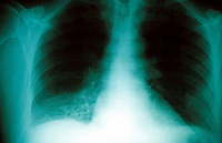 Chest x-ray of right basal pneumonia. This image may only be used to portray the subject in a positive manner..©shoutpictures.com..john@shoutpictures.com