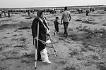 """GAZA, Palestine: Rida Moein Al Bana, alias Oum Ahmed, is at the Friday protest at the border with Israel. She is 45 years old and a mother of 9 children. On 7th December 2018, she was injured by an Israeli gunshot with an explosive bullet in her right lower leg while taking part in the """"Great March of Return"""" at the border between Israel and Gaza. Since then, she underwent 3 different surgeries in Gaza and in Egypt and still miss 5cm of her shinbone, 25th October 2019.<br /> <br /> GAZA, Palestine: Rida Moein Al Bana, alias Oum Ahmed, lors d'une manifestation du vendredi à la frontière avec Israël. Elle a 45 ans et est mère de 9 enfants. Le 7 décembre 2018, elle a été blessée par un tir israélien dans le bas de sa jambe droite alors qu'elle participait à la """"Grande Marche du Retour"""" à la frontière entre Israël et Gaza. Depuis lors, elle a subi 3 interventions chirurgicales à Gaza et en Égypte et manque toujours 5 cm de son tibia, le 25 octobre 2019."""