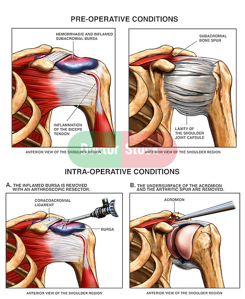 Shoulder Injury - Bursitis and AC Joint Bone Spurs with Surgery Repair.