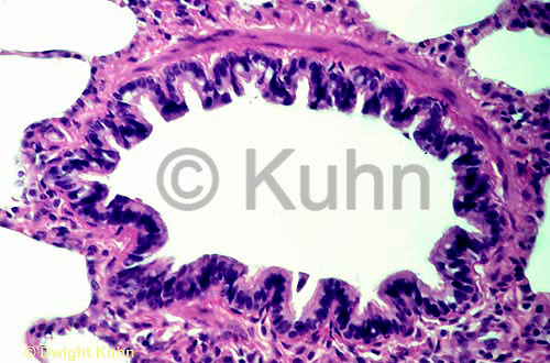 CZ15-002b  Vein - large in human lung  100x
