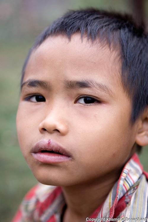 A Khmu boy, photographed at Ban Nalan Tai in Luang Namtha Province, Laos on November 10, 2009.   (Photo by Khampha Bouaphanh)