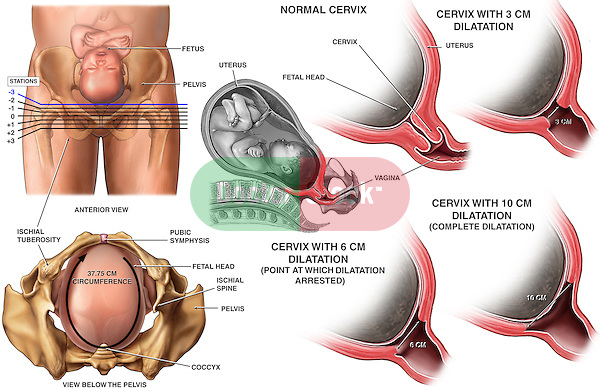 Birth Injury - Cephalopelvic Disproportion and Arrest of Cervical Dilatation (Dilation) in the Active Phase of birthing, and subsequent head entrapment.