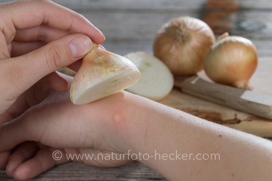 Zwiebel hilft bei Insektenstich, Mückenstich, Mückenstiche, Zwiebelhälfte wird auf die juckende Hautstelle gelegt, Zwiebelauflage, Hausmittel, Juckreiz, Zwiebeln, Küchenzwiebel, Allium cepa, Onion