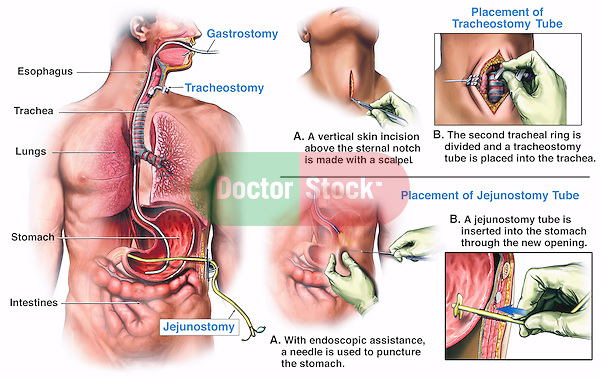This medical exhibit depicts the step-by-step surgical procedures and final placement of a tracheostomy, gastrostomy, and jejunostomy tube in a male figure from an anterior (front) and sagittal view. The associated surgical anatomy, including the sternal notch, esophagus, trachea, tracheal ring, lungs, stomach, and intestine, are also described.
