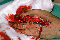 Severe hand injury showing crushed fingers. This image may only be used to portray the subject in a positive manner..©shoutpictures.com..john@shoutpictures.com