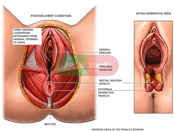 Third Degree Episiotomy Tear. This medical diagram illustrates the condition of a female perineum after giving birth. Two cut-away inferior views depict these anatomical structures and traumas: vaginal opening, rectum, perineal muscles, rectal mucosa, external sphincter muscle, post-delivery female perineum, episiotomy tear, third degree laceration.