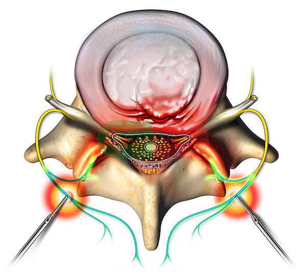 This stock image features a single superior view of a protruding L4-5 intervertebral disc and spinal vertebra. Rhizotomy needles are shown inserted bilaterally delivering relief to the extiing nerve roots