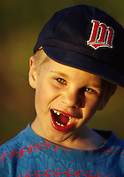 Happy boy with missing teeth and baseball cap.