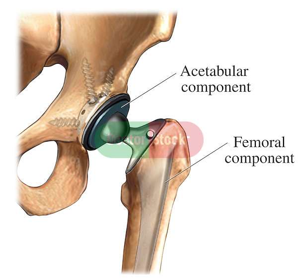This medical exhibit illustrates a hip prosthesis with both the acetabular component and the femoral component in place.