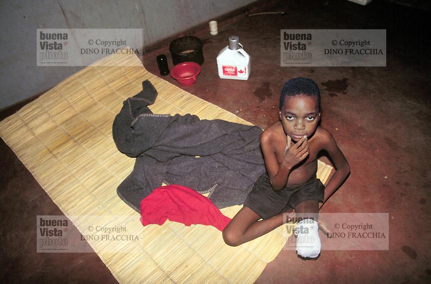 - child mutilated by a mine in the Inhaminga village hospital ( Sofala region )....- bambino mutilato da una mina antiuomo nell'ospedale del villaggio di  Inhaminga ( regione di Sofala )