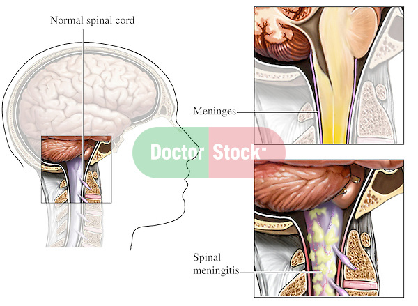 Shows the condition of spinal meningitis from a lateral (side) cut-away view using three drawings. The first illustration is an orientation figure of the head and neck with a small inset highlighting a normal spinal cord. The next two graphics are enlarged insets dramatically depicting how the meninges relate to the spinal cord and the appearance of the inflammation of this membrane of the spinal cord.