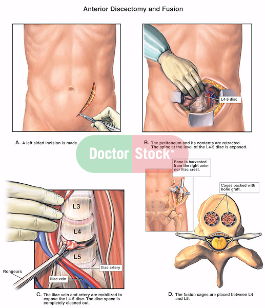 Spine Surgery - L4-5 Anterior Discectomy and Spinal Fusion Procedures.  Depicts the abdomen being incised and retracted, exposing the lumbar vertebrae and the L4-5 disc. The third illustration displays the anterior discectomy (diskectomy) surgical procedure. The fourth picture reveals the anterior iliac crest bone harvest. The fifth image illustrates a superior view of the L5 vertebra with the bone graft fusion cages in place.