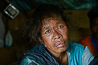 MADAGASCAR Antananarivo, homeless family, BERNADETTE RAMALALASOA is addicted to alcohol and glue