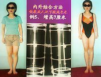 Before and after photo of a leg extension operation in China. The operation has become  relatively popular amongst women who believe that height will increase their job and prospects. This woman she is now 7cm higher...PHOTO BY SINOPIX