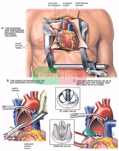 Heart Surgery - Aortic Valve Replacement. Accurately depicts the open-heart surgical procedure used to place a St. Jude or Porcine replacement valve in the heart. The procedure starts with exposure of the heart through an incision in the chest. Two additional intra-operative views  illustrate the removal of the diseased aortic valve and placement of the prosthetic valve.