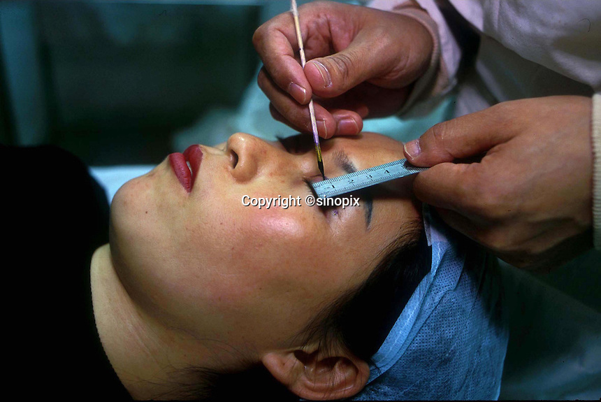 Gou Xiao, lies on the surgeons table and has her eyes measures and marked for the eye widening operation she is about to undertake. As the Chinese population grows richer more and people are turning to cosmetic surgeons for nose, eye and breast jobs...PHOTO BY SINOPIX