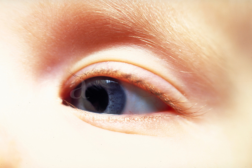 Closeup of 6 month old infant's eye. Michelle Makris.