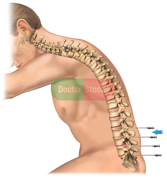 This stock medical image reveals a lateral view of a white male and lateral spine with discogram needles inserted at the L2-3, L3-4, L4-5 and L5-S1 levels.