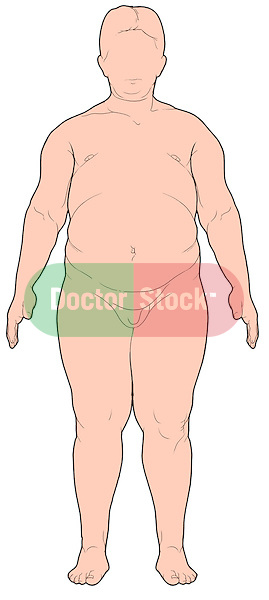 Obesity - Overweight (Obese) Male.