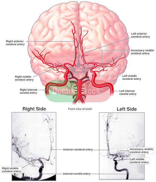 Cerebral Arteriograms. This full color medical exhibit features an anterior view of the brain with its main arteries. Below it are reproductions of two actual arteriograms: one of the right side and one of the left side. The arteriograms clearly show large bilateral blockages of the internal carotid arteries and many smaller thrombi throughout the arterial branches going up into the brain.