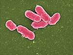 Bacteria, Salmonella paratyphi bacteria Causes salmonellosis, food poisoning, 20,000x magnification