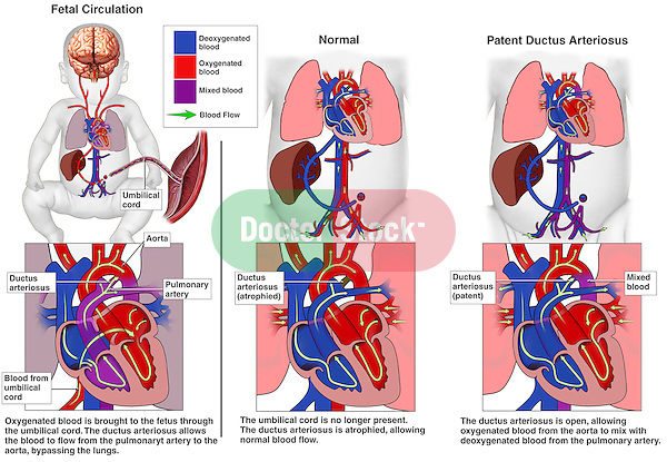 Congenital Heart Defects - Patent Ductus Arteriosus. Depicts fetal circulation showing the normal flow of blood through the heart and ductus arteriosus in utero. After birth, the exhibit contrasts normal blood flow in an infant with the ductus arteriosus closed off, with a patent ductus. In the latter, labels indicate oxygenated and deoxygenated blood mixing in the child's blood stream.