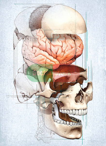 This medical image depicts an exploded view of the skull with the brain in an editorial style illustration.