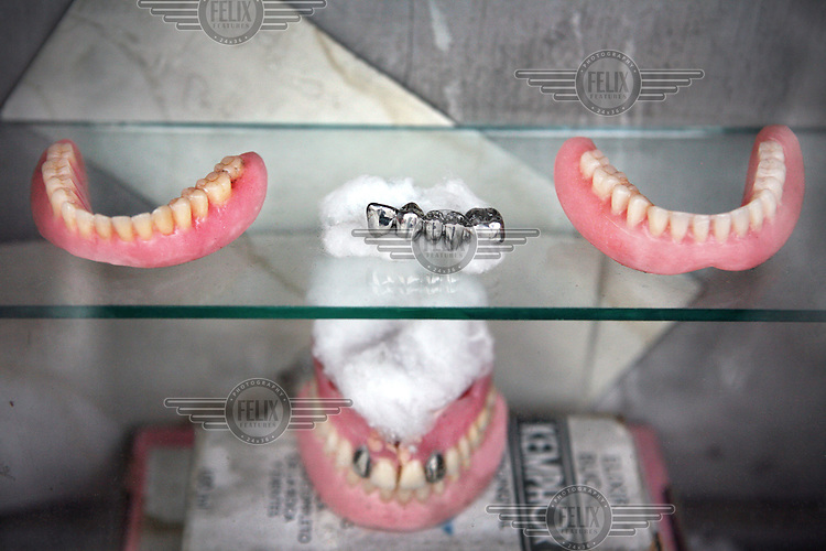 Set of silver teeth and dentures in a small display window of a dentist in Meknes.