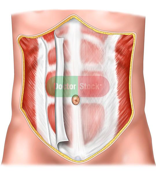 anterior abdominal wall, partial disection