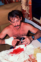 photographer Doug Perrine after 1988 attack by Caribbean reef shark, Carcharhinus perezii, pointing to camera viewfinder snapped off by shark, Bahamas, Caribbean Sea, Atlantic Ocean (photo by Jerry Greenberg)