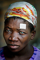 A woman waits for an operation to remove a cataract. The white sticker indicates which eye is to undergo the procedure.  <br /> <br /> From his base in Mbuji Mayi Hungarian ophthalmologist Friar Richard Hardi and his team travelled deep into the Congolese rainforest, by 4x4 and canoe, to treat people in isolated communities most of whom have never seen an ophthalmologist. At a small village called Pania they established a temporary field hospital and over the next three days made hundreds of consultations. Although both conditions are preventable, many of the patients they saw had Glaucoma or River Blindness (onchocerciasis) that had permanently damaged their eyesight. However, patients with cataracts, a clouding of the eye's lens, who were suitable for treatment were booked for an operation. For two days the team carried out the ten minute procedure on one patient after another. The surgery involves making a 2.2mm incision into the remove the damaged lens that is then replaced by an artificial one. Doctor Hardi is one of the few people willing to make such a journey but is inspired to do so by his faith and, as he says: 'Here I feel that I can really make a difference in people's lives'. /Felix Features