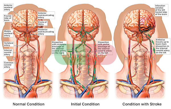Stroke. This medical exhibit features the interruption of the cervical vasculature with the blockage of the carotid arteries and subsequent infarction of the left frontal lobe of the brain. It includes an illustration of the normal vasculature of the brain emphasizing the Circle of Willis for comparison.