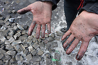 A rioter has his hands  burned   during the  violent protest against new draconian law to ban protestsacross the country.  Kiev. Ukraine