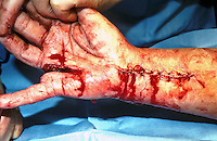 Lacerations of hand and arm. The arm has been sutured. This image may only be used to portray the subject in a positive manner..©shoutpictures.com..john@shoutpictures.com