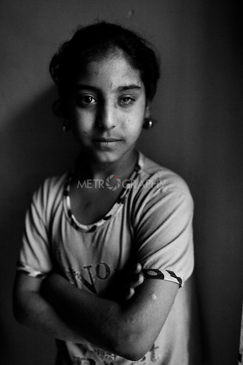25..3.2015 Kirkuk,Iraq. Asma, 9 nine years old, is the niece of Wadid. She lost her parents and suffered severely from a bomb explosion in 2007.