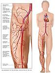 Classic Cardiac Catheterization.
