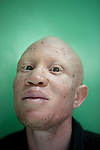 For The Uganda Albinos Association<br /> <br /> Portrait of Jude Ssebyanzi, director of the Uganda Albinos Association, in Kampala, Uganda. Photo credit: Benedicte Desrus