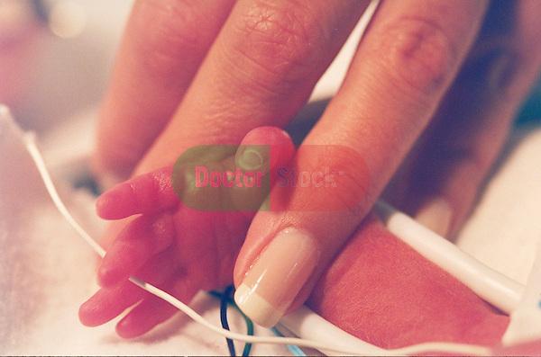 Premature infant neonatal intensive care unit