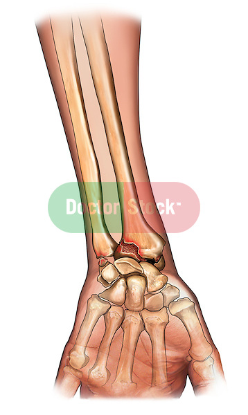 Bones of the Wrist - Palmar view; this medical illustration depicts the bones of the wrist in a palmar view.