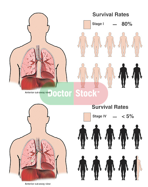 This full color medical exhibit is a graphic representation of lung cancer survival rates, comparing the survival rates for stage I and stage IV.  The exhibit also includes an illustration of each stage of cancer.