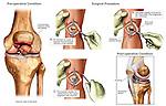 Comminuted Patellar (Kneecap) Fracture Surgery