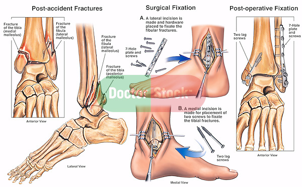 Left Tri-malleolar Ankle Fractures with Surgical Placement of Plates and Screws.