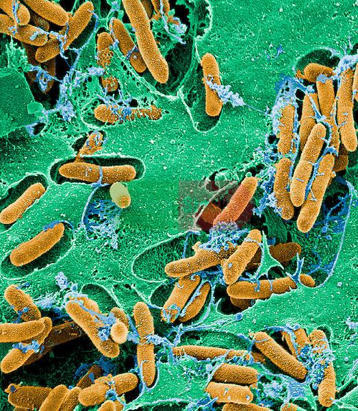 Bacteria, verotoxigenic E coli, E. coli causes 'Hamburger disease' E coli, E. coli, O157:H7 Food poisoning, enteritidis, intestinal disorders hemorrhagic colitis, hemolytic uremic syndrome, 15,000x magnification