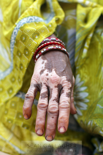 A villager's hand in a community that is being afflicted by a wide variety of health problems, believed to be cause by contact with industrial waste water from nearby leather tanneries.