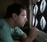 A doctor examines breast x rays.