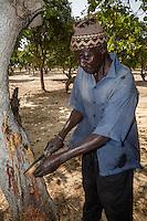 Cashew Nut Farmer inspecting Tree.  Flowing sap indicates an illness.  Near Sokone, Senegal.  The farmer is of the Jola (French: Diola) ethnic group.
