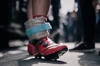 John Degenkolb (DEU/Trek-Segafredo) ankle wrapped in ice after the race where he crashed once again<br /> <br /> 104th Tour de France 2017<br /> Stage 11 - Eymet › Pau (202km)